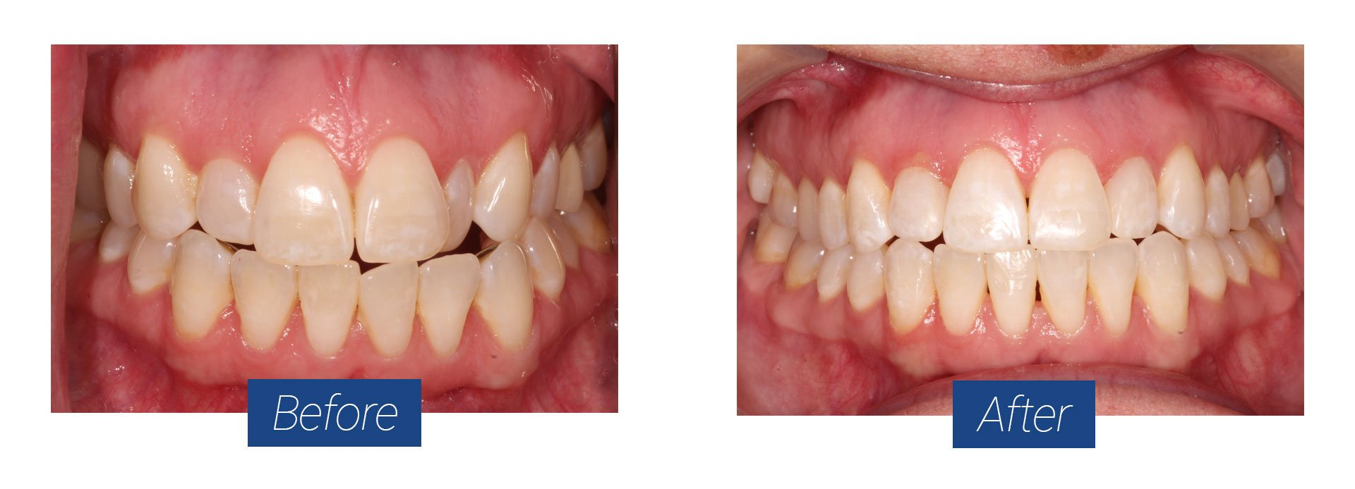Invisalign Before and After 1 in Hagerstown MD