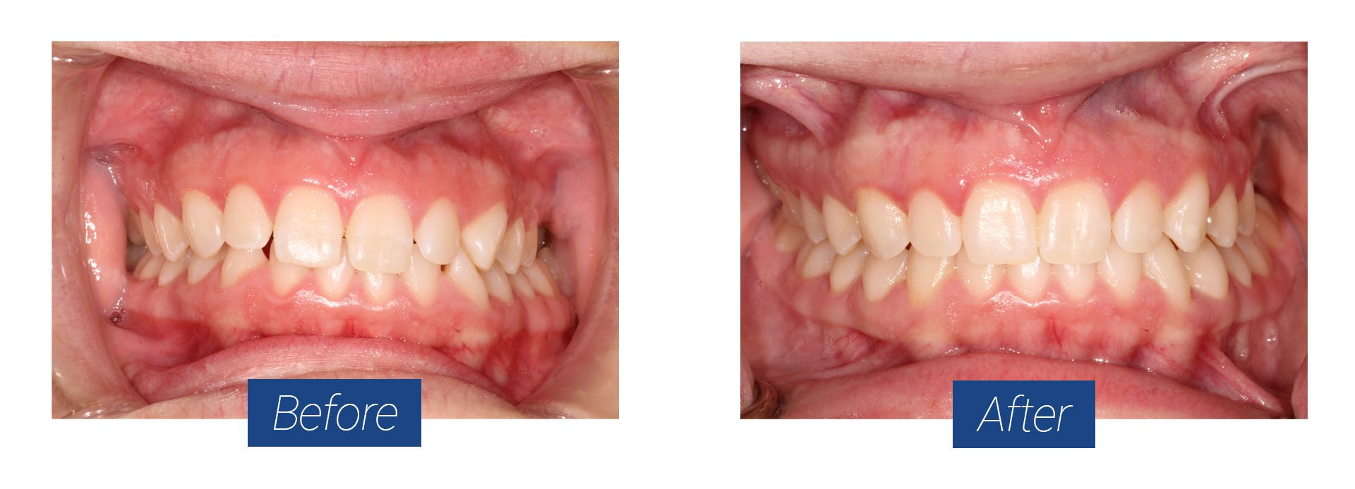 Invisalign Before and After 3 in Hagerstown MD