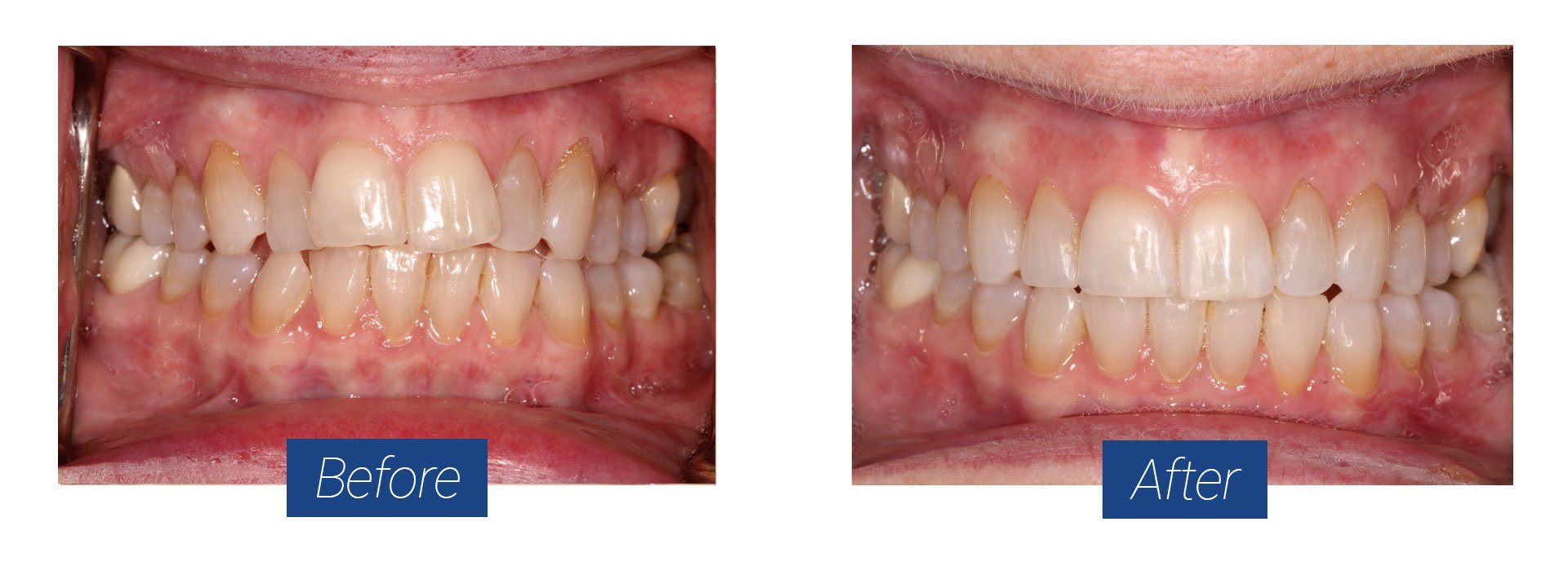 Invisalign Before and After 4 in Hagerstown MD